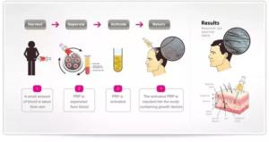 Hair Transplant Cost in Dubai & Abu Dhabi