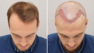 Hair Transplant in Dubai, Abu Dhabi