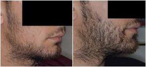 Beard Hair Transplant in Dubai Abu Dhabi & Sharjah